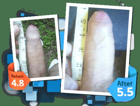 sizegenetics results photos & pictures
