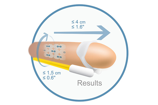 Penile Traction Diagram by AndroMedical